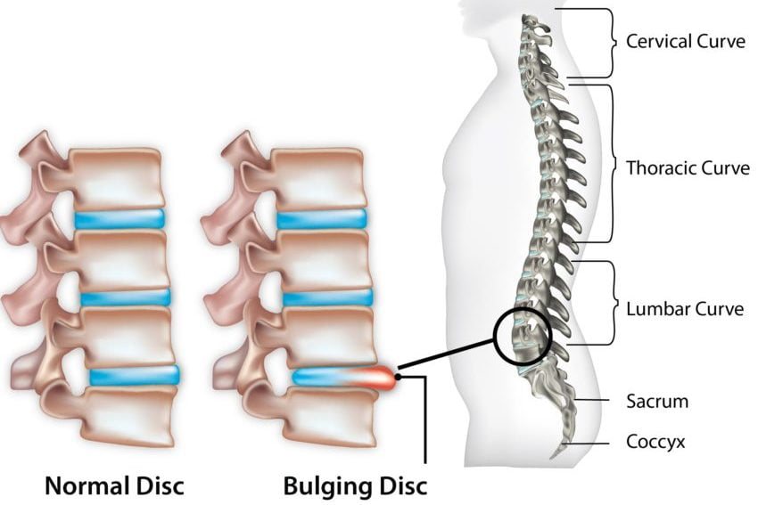 A healthy lumbar disc compared to an injured umbar disc